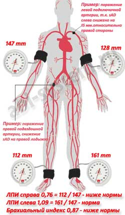 сочетанное поражение подключичной и подвздошной артерий